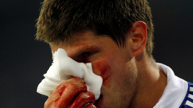 Huntelaar breaks nose, in Dutch squad
