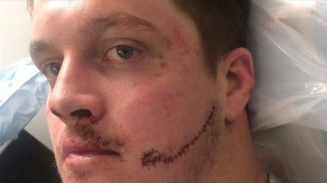 40 points de suture au visage: l'horrible blessure de Nicholas Schonert